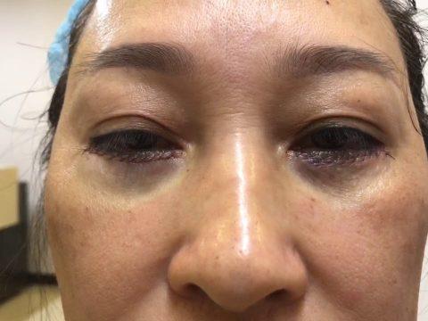 Bọng mắt bị sưng đau do bóc mỡ bọng mắt phải làm sao?