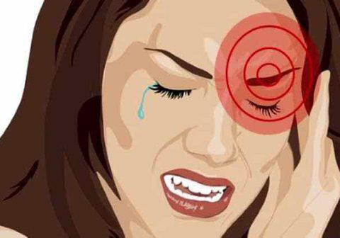 Tại sao bị nhức mắt trái – Hướng dẫn cách chữa