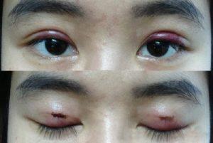 sưng đau mí mắt trên 1