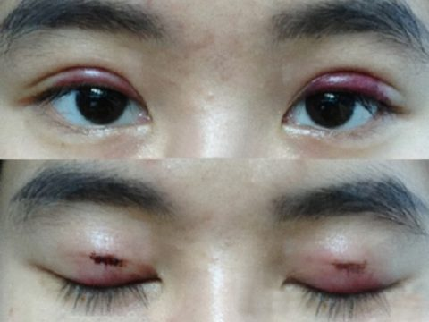 Cách giảm sưng đau mí mắt trên sau cắt mí