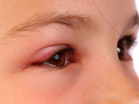 Cách chữa mí mắt bị sưng