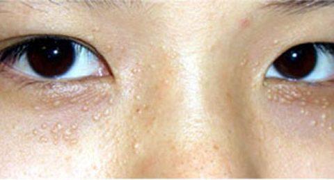 Mọc mụn trắng ở mí mắt có phải mụn thịt – cách chữa