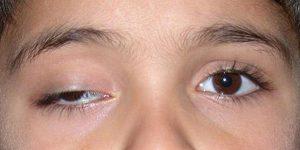sụp mí mắt là mắc bệnh gì 2