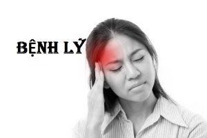 đau nửa đầu bên phải và nhức mắt 2
