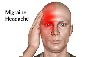 đau nửa đầu bên phải và nhức mắt 3
