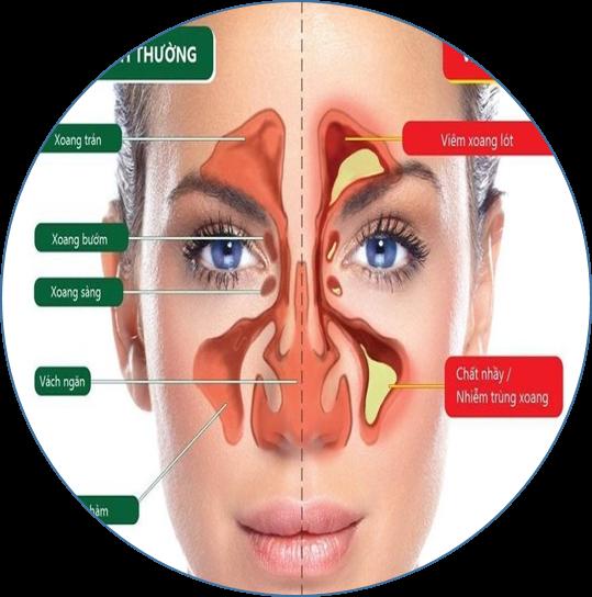 hiện tượng đau đầu nhức hốc mắt 4