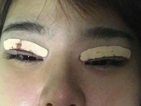 Cách xử lý mí mắt bị sưng và ngứa sau thẩm mỹ mắt