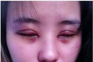 mí mắt bị sưng và nhức 3