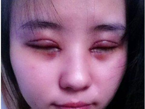 Mí mắt bị sưng và nhức sau cắt mí – cách xử lý