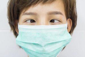 phẫu thuật thẩm mỹ mắt lác 1