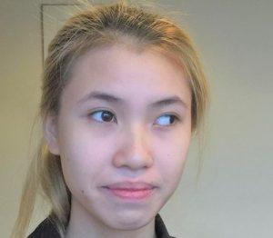 phẫu thuật thẩm mỹ mắt lác 2