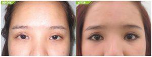 phẫu thuật thẩm mỹ mắt lác 5