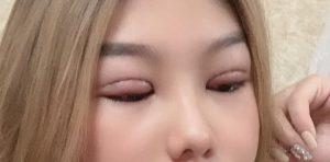 lành thương sau cắt mí mắt 2