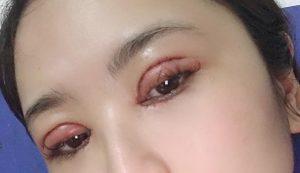 lành thương sau cắt mí mắt 3