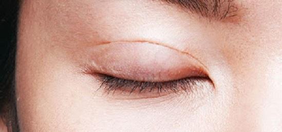 lành thương sau cắt mí mắt 5